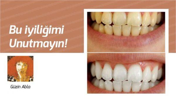 Dişlerinizi evinizde 2 dakikada beyazlatın
